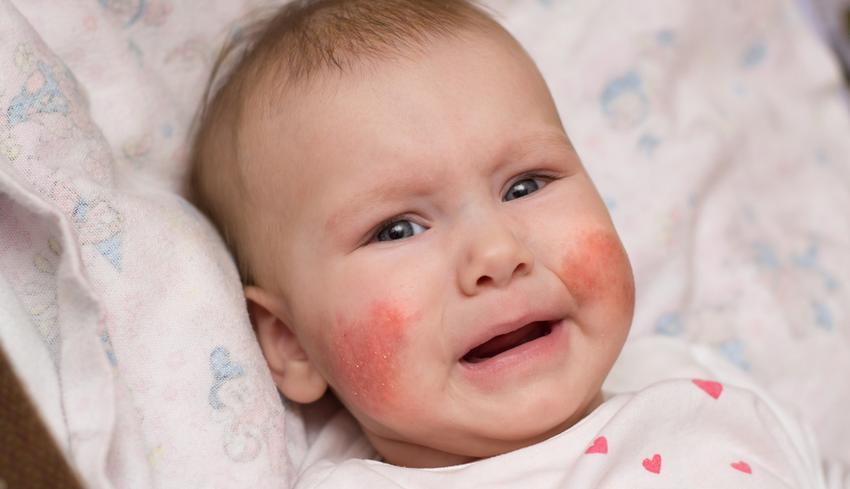 az arcán egy nagy vörös folt viszket a lábakat vörös foltok borítják és duzzadtak