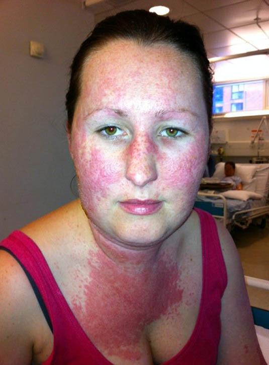az arcát vörös foltok borították