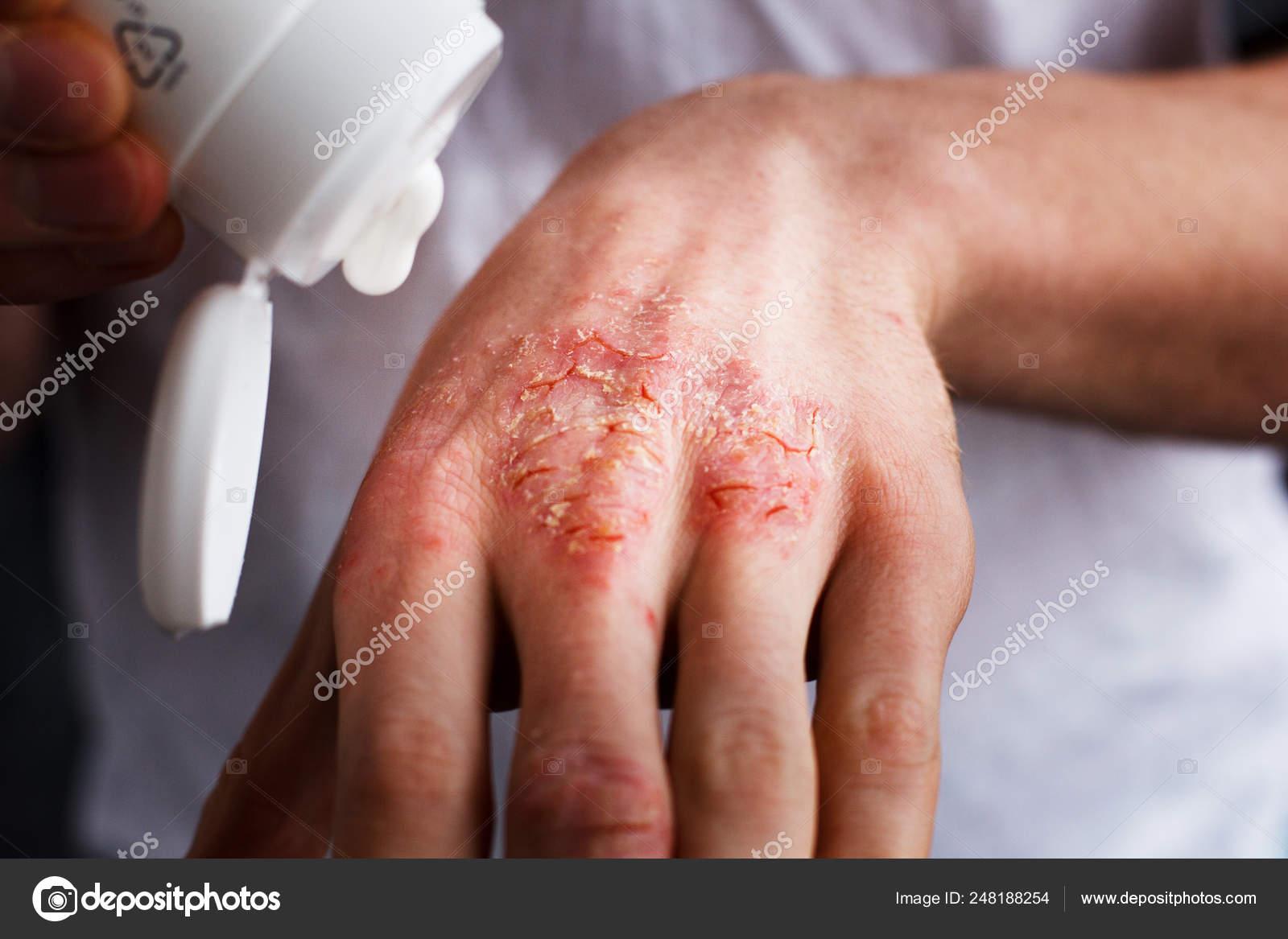 kiütés vörös foltokkal a kezeken korpásodás és vörös foltok az arcon