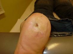OTSZ Online - A psoriasishoz sok egyéb betegség is társulhat