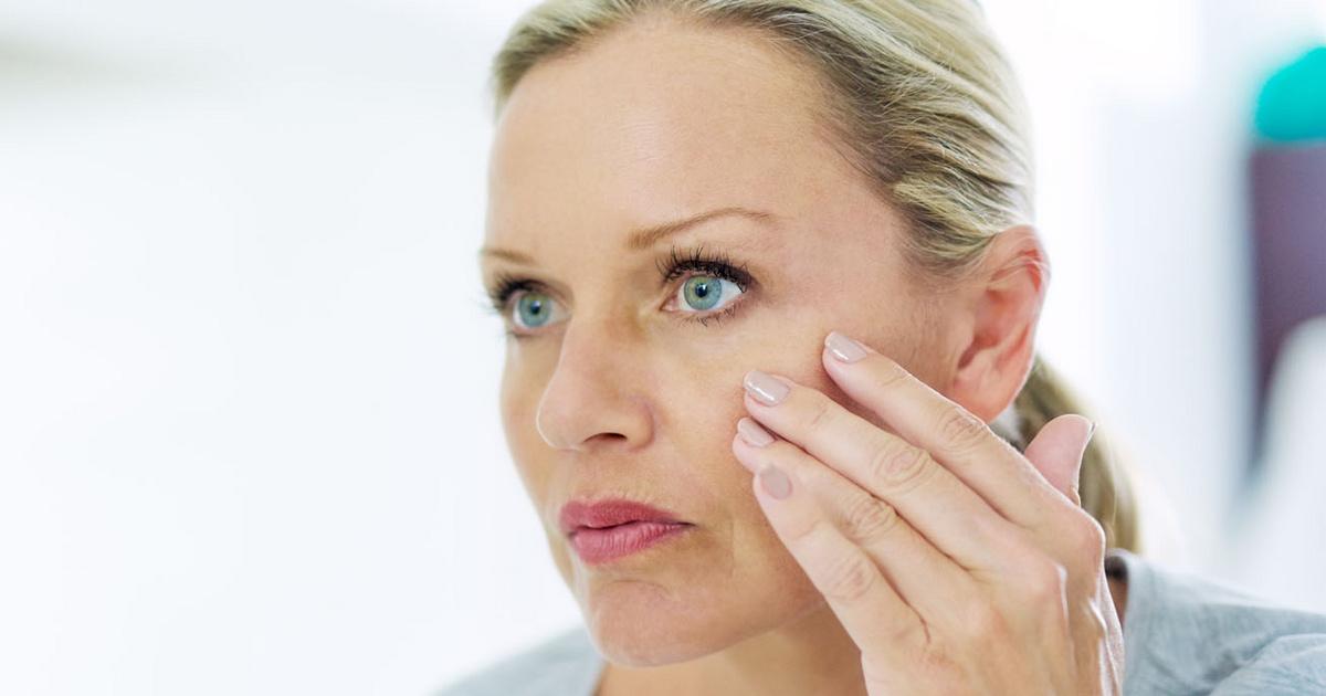 Seborrheás dermatitisz - Egészségtüköholtido.hu