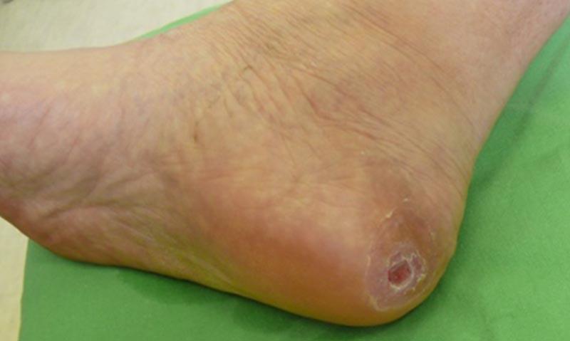 vörös lábfoltok kezelése cukorbetegségben piros foltok a lábakon és a kezeken fájnak