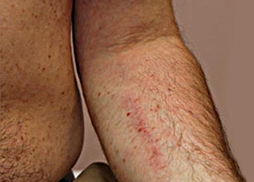 libadombok és vörös foltok jelentek meg a lábakon