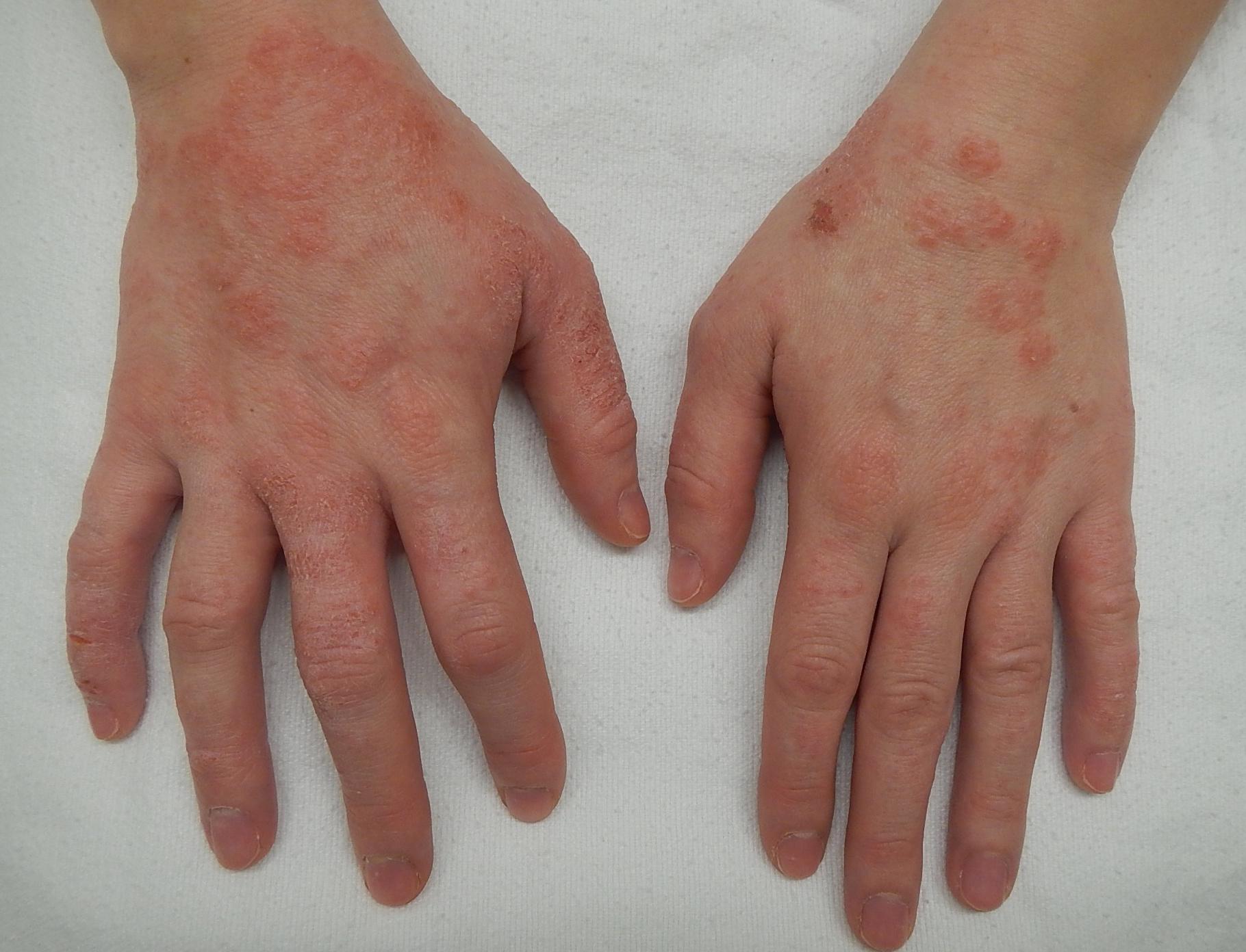 vörös foltok jelennek meg az ujjakon