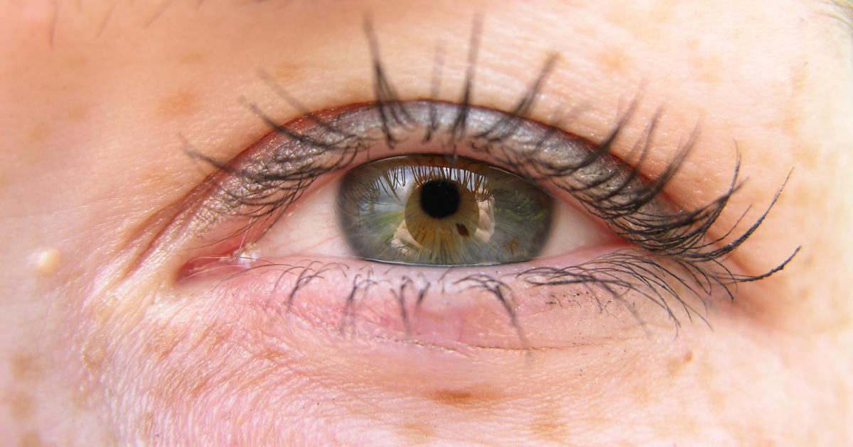 Piros foltok a szem alatt - Cseppek