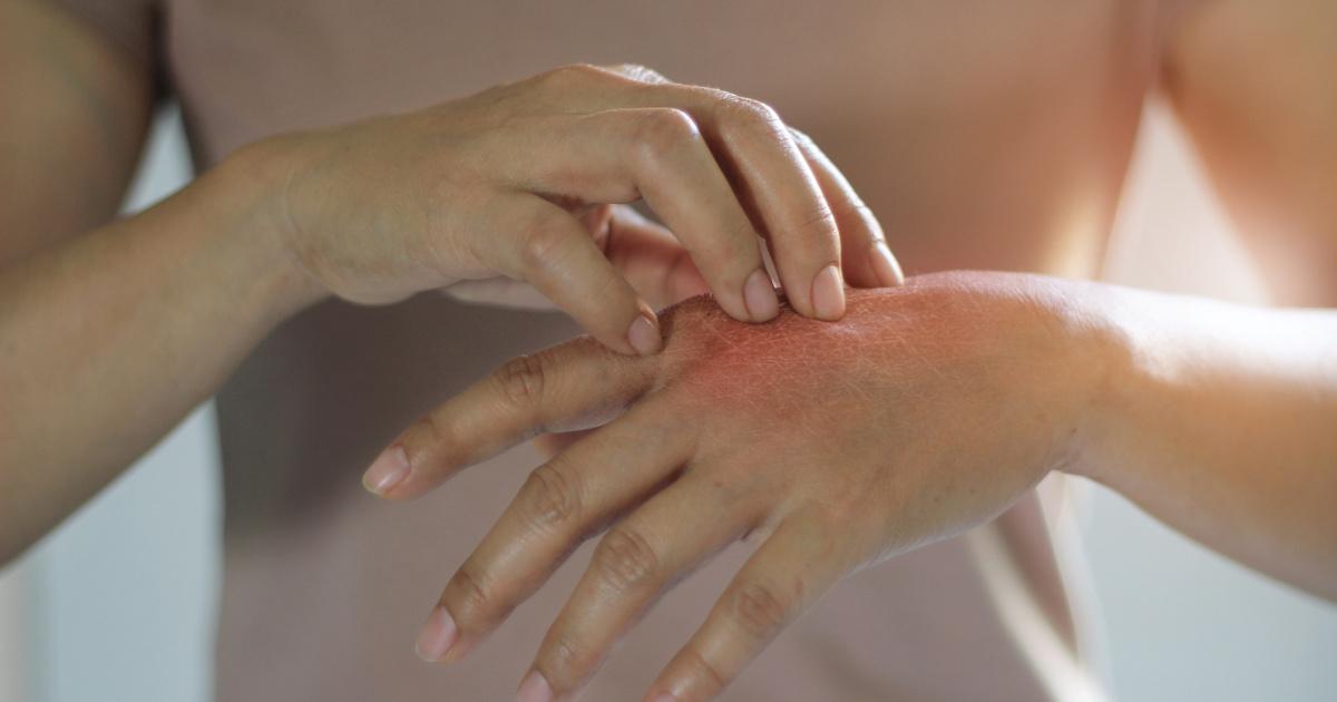 ultraibolya fny a pikkelysmr kezelsre