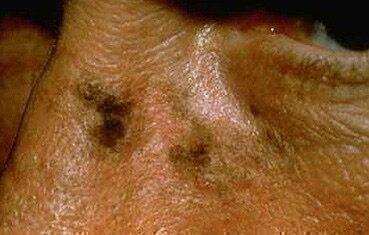 pszoriázisos kezelés után egy hét múlva újra megkezdődött az orr közelében vörös foltok pikkelyesek