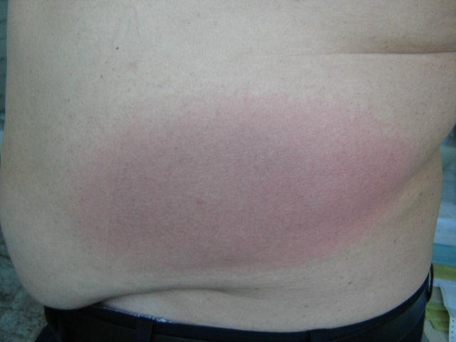van egy piros folt a gyomorban, és fáj