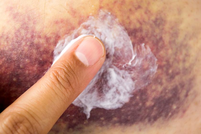 vörös foltok megjelenése a kéz bőrén pikkelysömör kezelése népi gyógymódokkal 2020
