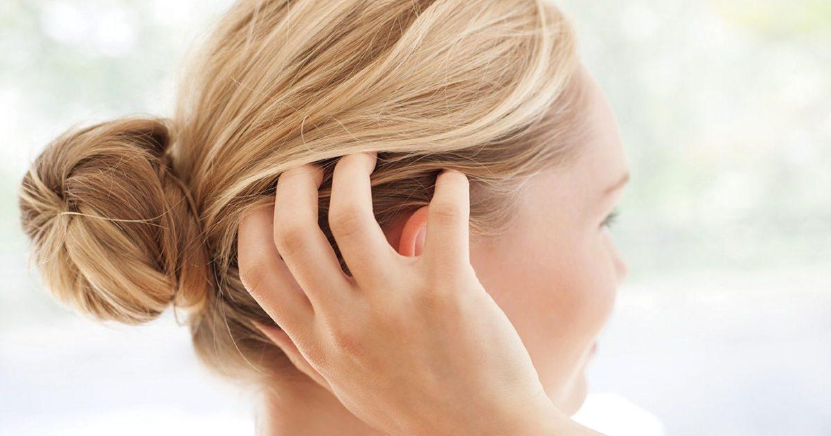 fej pikkelysömör kezelése homeopátia