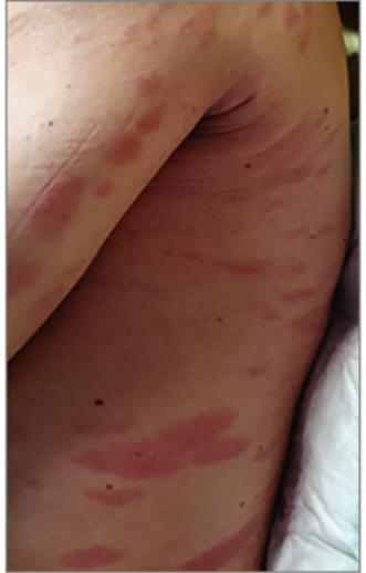 fertőző vörös foltok a bőrön