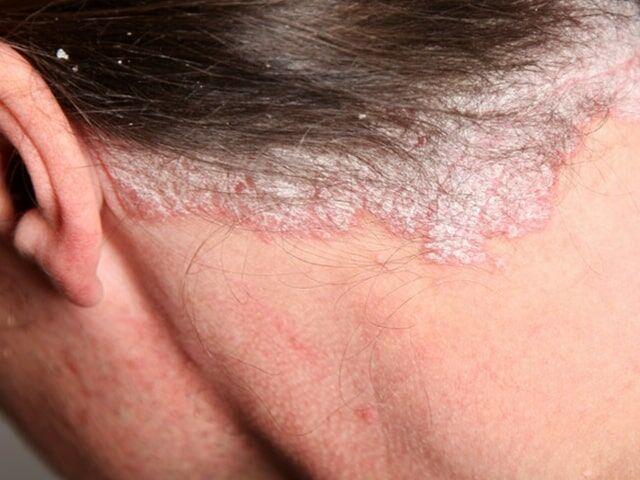 Pikkelysömörre gyógynövényes kezelés? | BOON