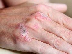 herbalists pikkelysömör kezelése vörös foltok a talpon fotó és kezelés