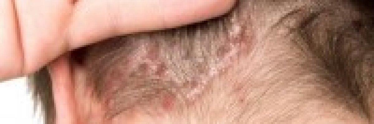 hogyan kell kezelni a fül mögött lévő vörös foltokat