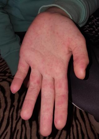 hogyan kell kezelni a tenyér vörös foltjait vizelet pikkelysömör kezelése