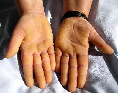 hogyan kell kezelni a tenyér vörös foltjait a bőrt vörös foltok borítják, és mi viszket