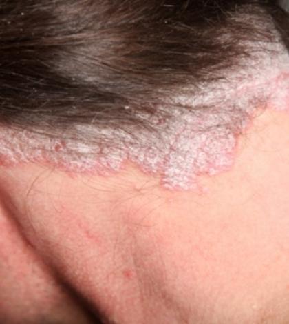 pikkelysömör a lábakon a kezelés kezdeti szakasza vörös folt az ember arcán