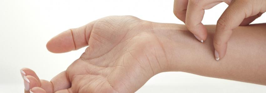 hogyan lehet pikkelysömör gyógyítani babérlevelekkel