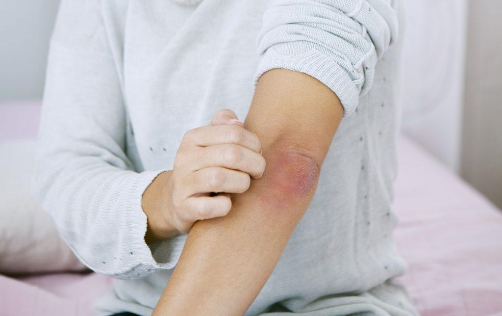 hogyan és hogyan kell kezelni a test pikkelysömörét