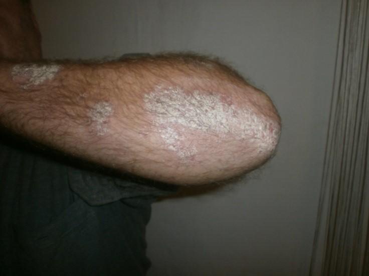 kenőcs második bőr pikkelysömör