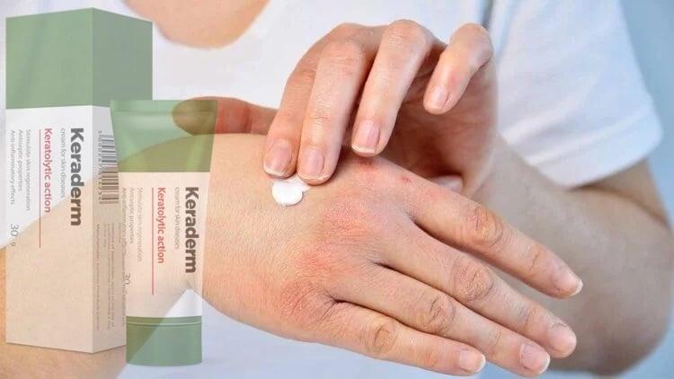 keratolytics pikkelysömör kezelése