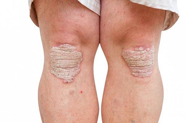 folt a vörös pontok bőrén pikkelysömör fotó a kezdeti szakaszból a lábakon kezelés