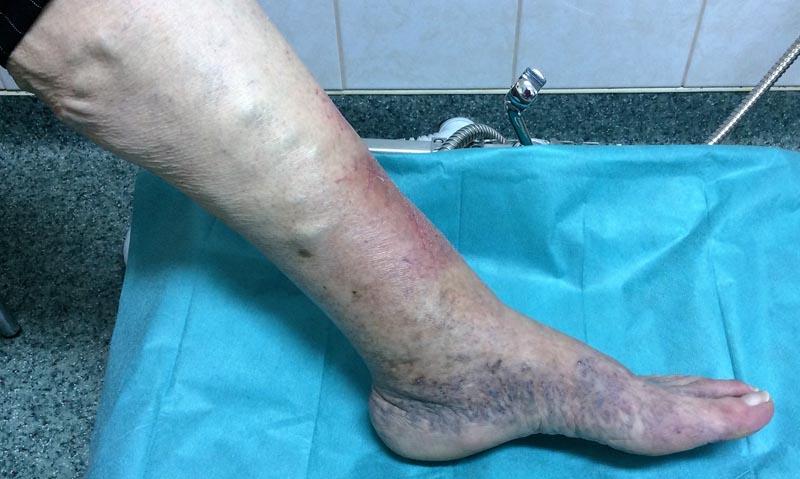 élénkvörös foltok az alsó lábakon