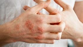 Pikkelysömör tüneteinek népi jogorvoslat