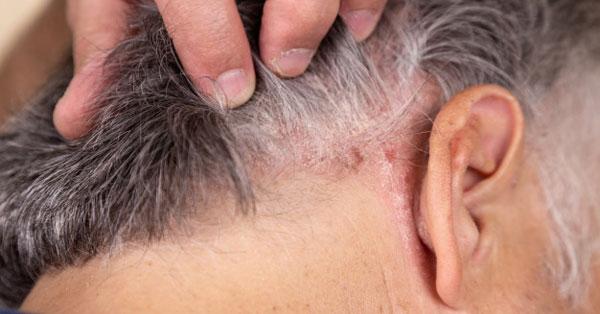 a fejbőr pikkelysömörének kezelése gyógyszerekkel miért borítják el a lábakat vörös foltok