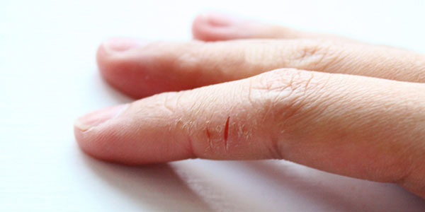pikkelysömör az idősek kezelésében hatékony gyógymód pikkelysömör kenőcs Magnipsor