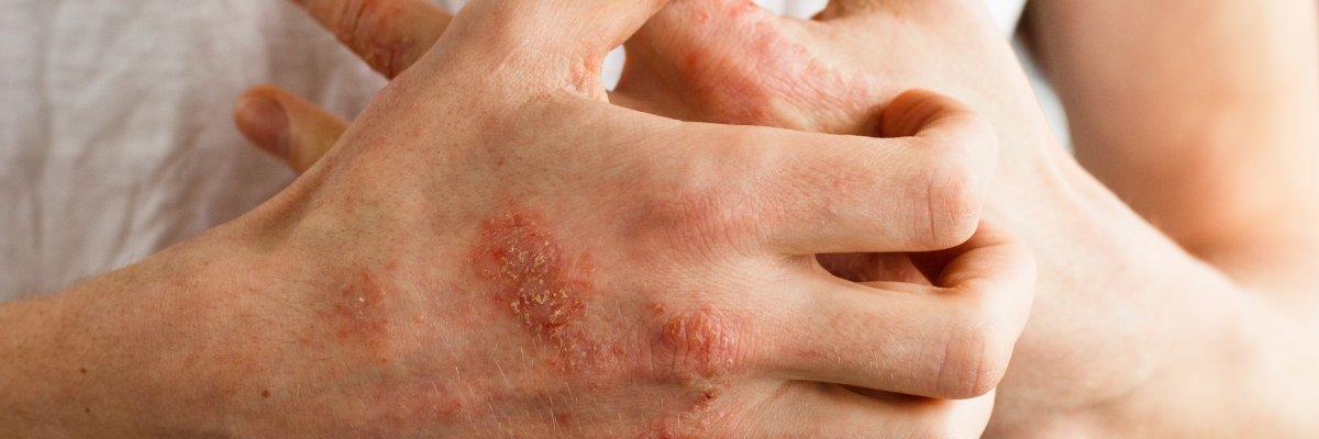 pikkelysömör és seborrhea kezelése vörös száraz folt az okán