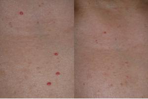 Piros pötty a bőrön: cseresznye-angioma