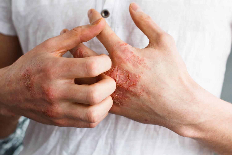 specifikus pikkelysömör kezelése vörös foltok jelentek meg az arc tisztítása után