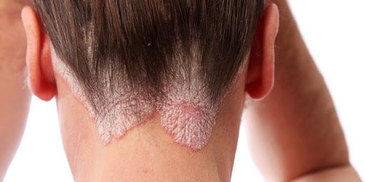 Thai krém pikkelysömörhöz hogyan kell kezelni a homlok vörös foltjait