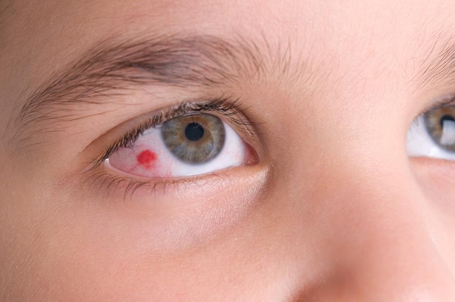 Piros foltok az orr körül