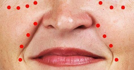 vörös folt az ember arcán kenőcs népi gyógyító pikkelysömör vélemények