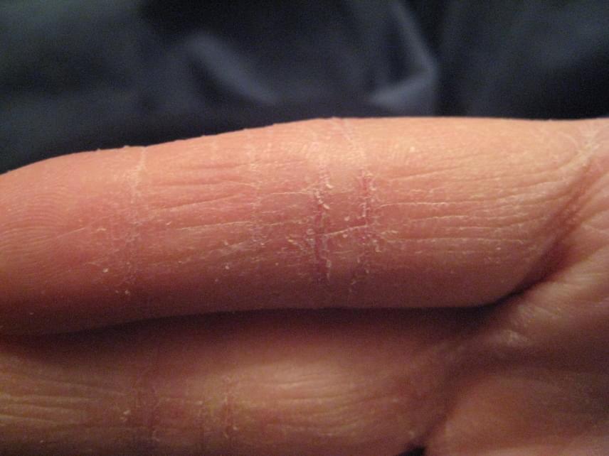 vörös folt az ujjak között a kézen