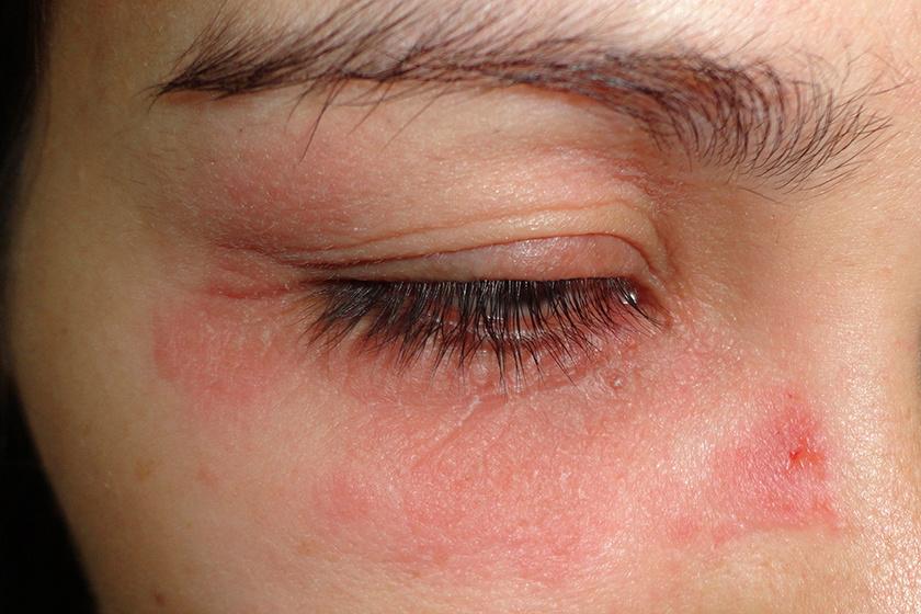 vörös foltok az arcon az orr közelében és a homlokán)