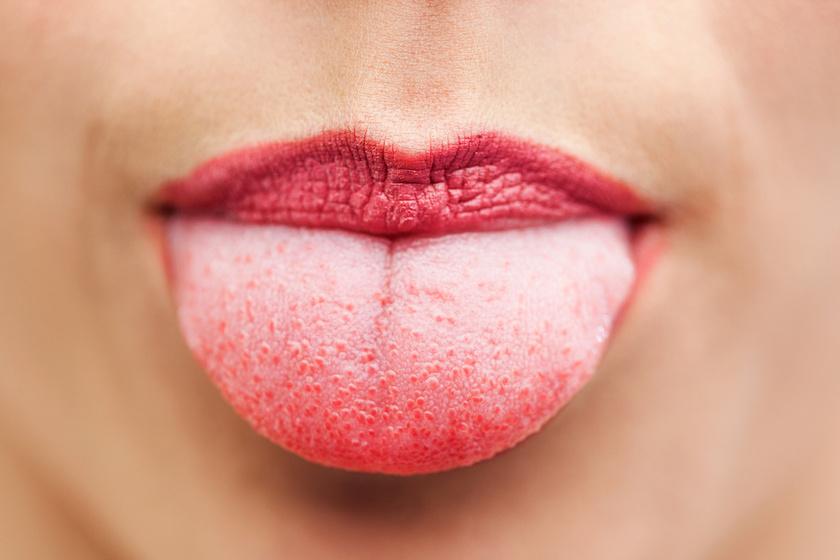 vörös foltok az ajkakon hogyan kell kezelni hogyan lehet pikkelysömör gyógyítani terhesség alatt