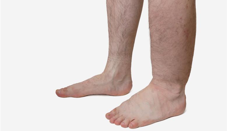 a lábak fájnak és vörös foltok jelennek meg