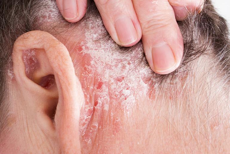 az arc és a vörös foltok erősen hámlanak orvosság a fejbőrön lévő vörös foltok ellen