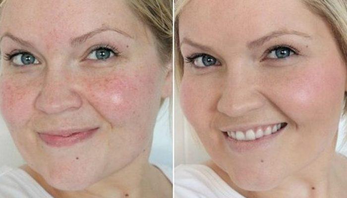 vörös foltok az arc tisztítása után