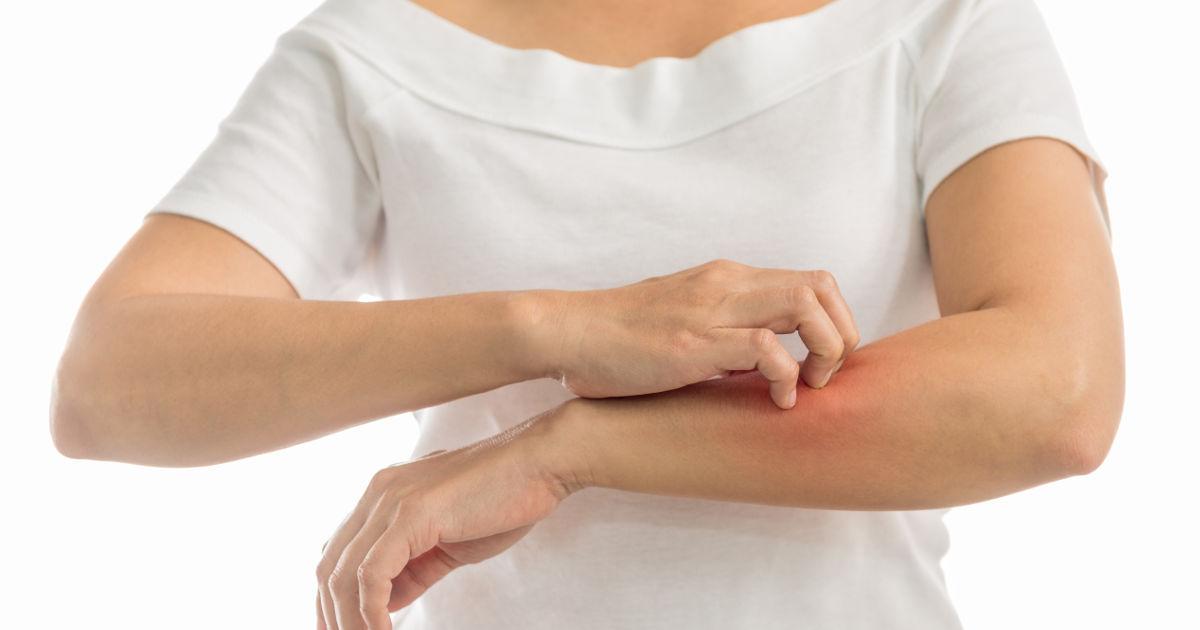 vörös foltokat öntött ki a test bőrén pelyhes vörös foltok az arcon, a bőrgyógyász előírása szerint