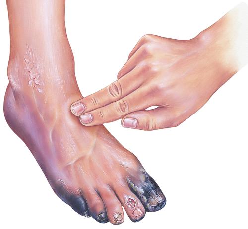 bizsergés a lábon és a vörös foltok