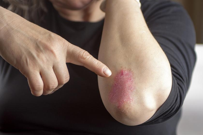 pikkelysömör tünetei kezelst okoznak vörös foltok a felnőttek lábain és karjain