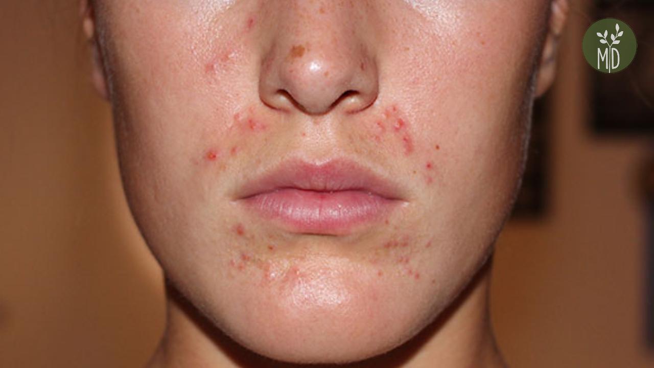Így változik a bőre a ciklusa során - Dívány