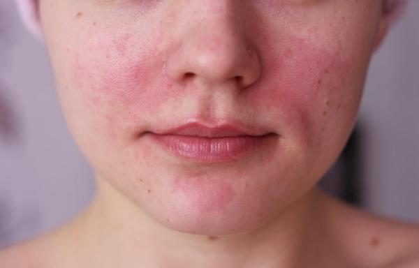 vörös folt az arcon fürdés után