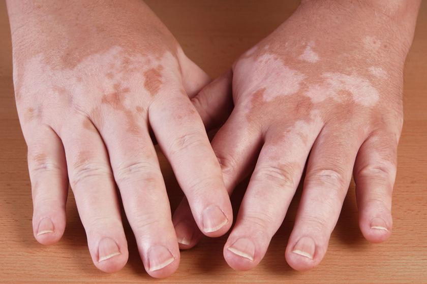 Eucerin®: Atópiás száraz bőr   Atópiás dermatitisz gyermekek arcán