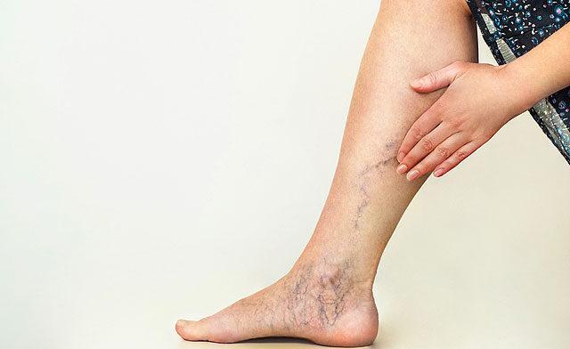 a lábujjakon lévő piros foltok gombák láb nagy piros foltokkal az alján