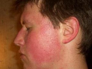 Milyen betegségre utalnak a vörös foltok? Vörös foltok a hadsereg arcán